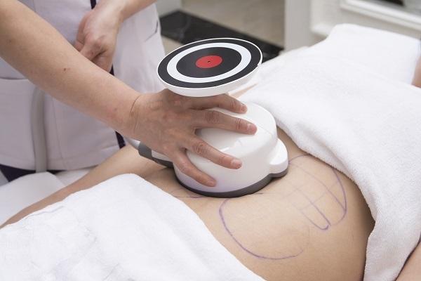 công nghệ giảm béo ultra burnfat là gì,giảm béo ultra burnfat là gì,giảm béo ultra burnfat có tốt không,giảm béo ultra burnfat có giảm béo hiệu quả không