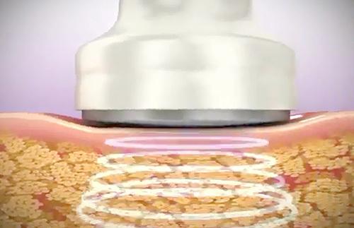 Giảm béo bằng công nghệ Cavi Lipo được tiến hành như thế nào, có hiệu quả không?, giảm béo cavi lipo, công nghệ giảm béo cavi lipo, có mẹ nào giảm béo công nghệ cavi lipo chưa, máy giảm béo cavi-lipo, công nghệ giảm mỡ bụng không phẫu thuật, giảm béo bằng công nghệ cavi lipo,