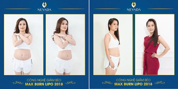 giảm béo Max Burn Lipo có đau không