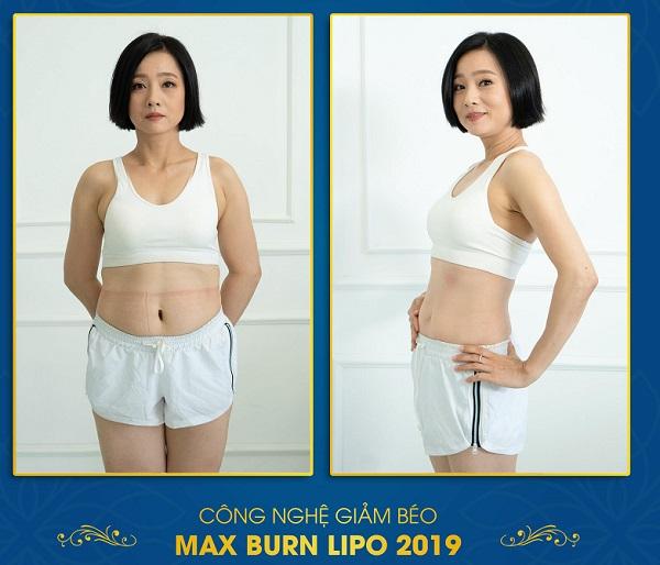 Chi phí giảm béo bụng Max Burn Lipo mới nhất 2019