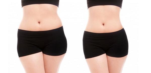 cấy chỉ giảm béo bụng,giảm cân bằng phương pháp cấy chỉ,cấy chỉ giảm béo webtretho,phương pháp cấy chỉ giảm cân,cấy chỉ giảm cân có hiệu quả,cấy chỉ giảm béo ở hà nội