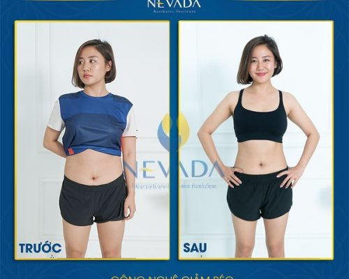 [Hỏi-Đáp] Giảm béo Max Burn Lipo có hiệu quả không?