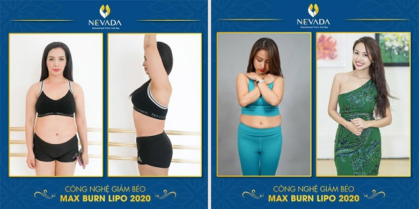Choáng trước thực đơn giảm cân của IU, ép 4kg trong 4 ngày, thực đơn giảm cân của iu, iu giảm cân trong bao lâu, thực đơn iu diet, iu giảm cân như thế nào, thực đơn của iu bao nhiêu calo. thực đơn giảm cân của sao Hàn IU, IU diet,