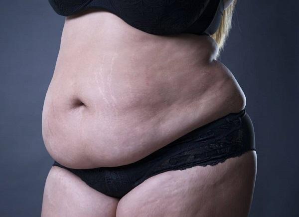 bị béo bụng phải làm sao, béo bụng phải làm sao, béo bụng làm thế nào, béo bụng phải là thế nào, béo bụng dưới phải làm sao, béo bụng thì phải làm sao, béo bụng phải làm gì, bị béo bụng phải làm thế nào