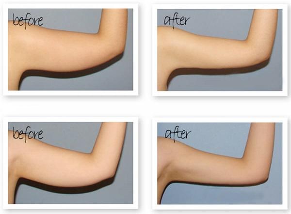 cách làm giảm mỡ bắp tay nhanh nhất, giảm mỡ bắp tay nhanh nhất, giảm mỡ bắp tay cấp tốc, giảm mỡ bắp tay nhanh chóng, cách giảm mỡ bắp tay nhanh nhất tại nhà, cách giảm mỡ bắp tay nhanh nhất, cách giảm mỡ bắp tay nhanh, giảm mỡ bắp tay cấp tốc tại nhà, giảm béo bắp tay cấp tốc, cách giảm mỡ bắp tay cấp tốc